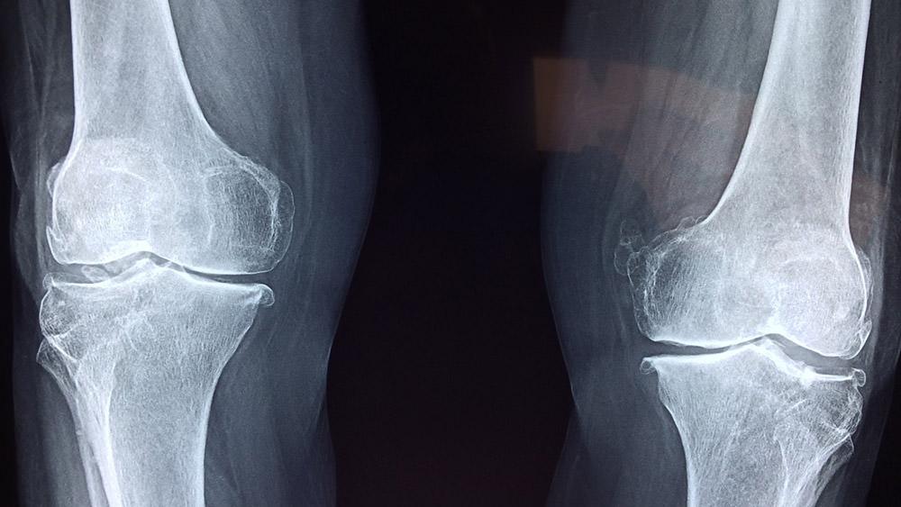 Bambú Clinic - x-ray arthritis
